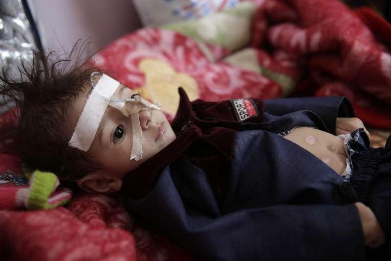 葉門內戰經年,民不聊生,兒童尤其可憐(AP)
