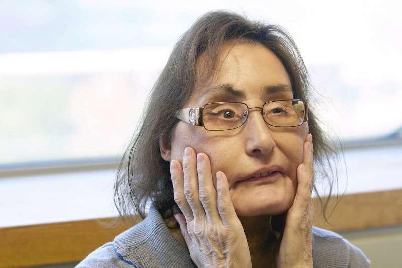 遭丈夫槍擊致重傷,成為美國首名接受臉部局部移植患者的卡普(Connie Culp)已於7月底逝世,享年57歲。(AP)