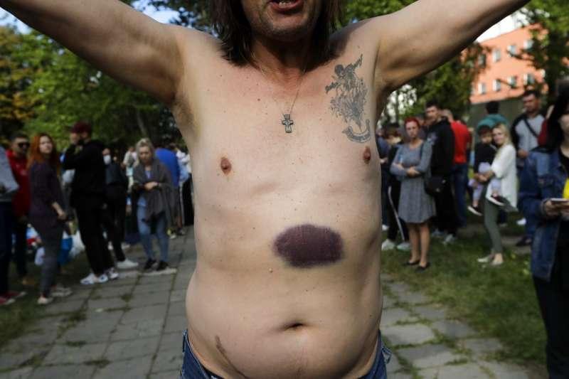 8月14日,一名示威者展示自己被警方拘捕期間遭到虐打的瘀青(美聯社)