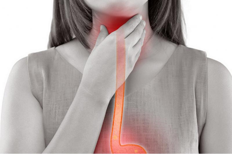 俗稱「火燒心」的胃食道逆流,已是忙碌現代人的文明病,若輕忽不處理,可能造成更嚴重的病變。
