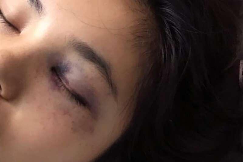 中國河南省劉姓女子去年遭丈夫家暴,為逃命從2樓一躍而下導致全身重傷,苦等一年,終於在7月勝訴成功離婚。(微博截圖)
