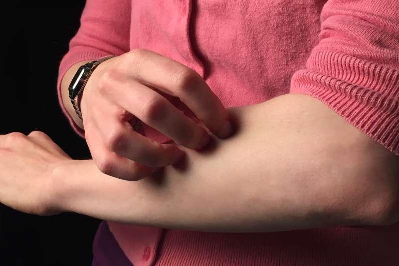 皮膚搔癢的成因不盡相同,若自己買成藥來擦很可能只是治標不治本。(圖/取自flickr)