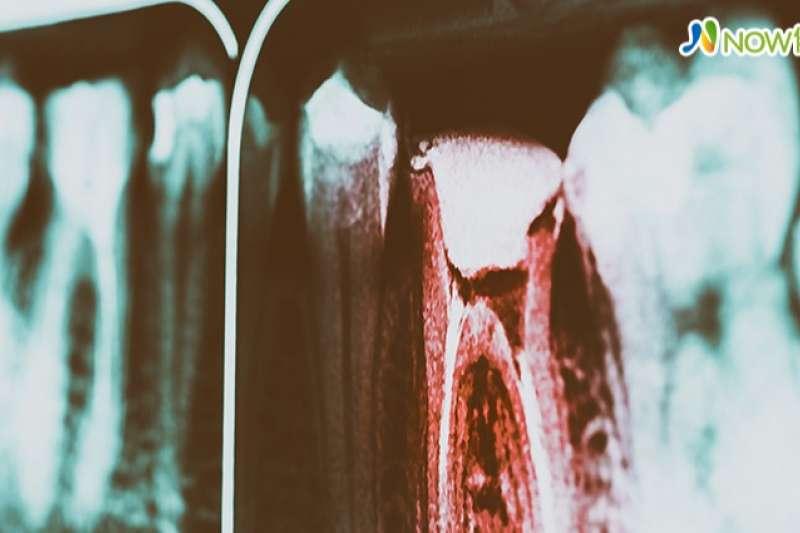 每次治療口腔能拔幾次牙,台北醫學大學口腔醫學院院長鄭信忠強調幾顆牙不是重點,而是身體有無慢性病史與藥物過敏。(圖/ingimage)