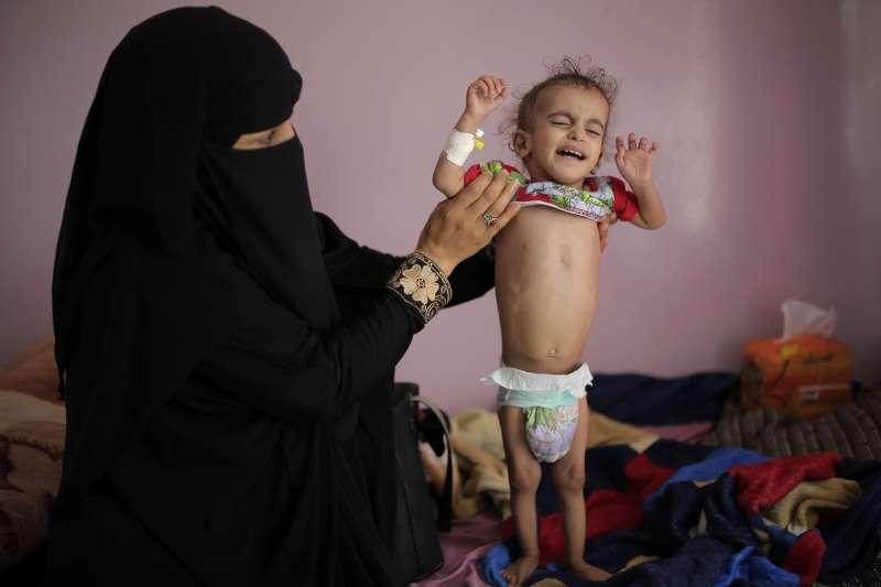 葉門沙那的沙賓醫院裡,一名媽媽扶著營養不良的兒子(美聯社)