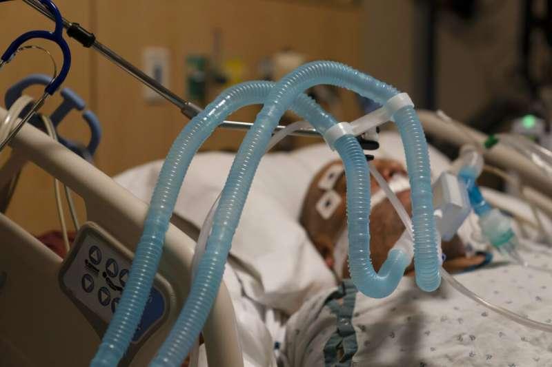 美國的新冠疫情始終沒有好轉跡象,讓最前線的醫療人員承受莫大壓力。圖為洛杉磯的聖十字醫療中心加護病房裡的一位新冠重症患者。(美聯社)