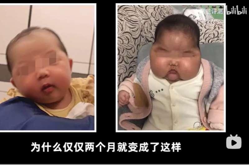 中國又出現家長誤用劣質產品,造成嬰兒頭部異常發育、甚至額頭長毛的「大頭娃娃」,涉案商品則是抑菌霜。(圖取自魏文鋒嗶嚦嗶嚦網頁bilibili.com)