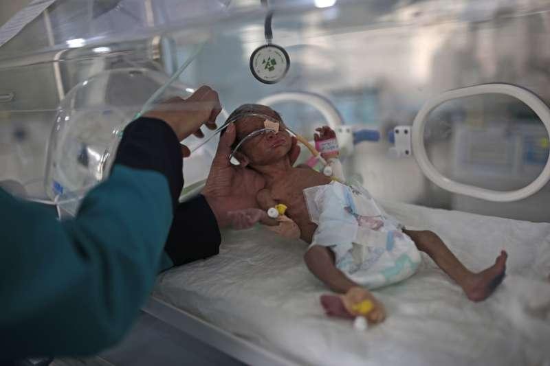 葉門內戰,首都沙那一家醫院,嚴重營養不良的新生兒(AP)