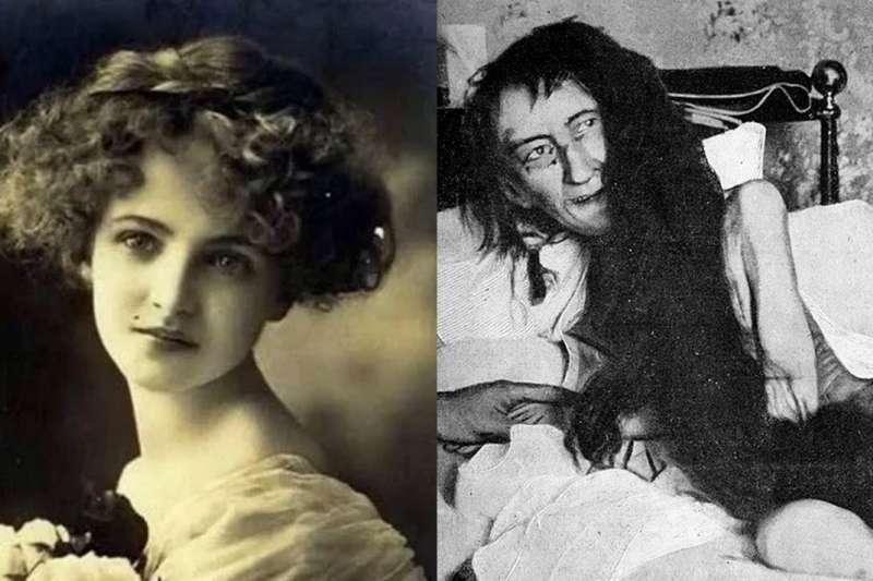19世紀法國發生了一起離奇失蹤案件,25年後的一封匿名信卻揭發了受害人的慘狀,幕後的家庭悲劇更驚人。(合成圖/取自youtube、Wikipedia)