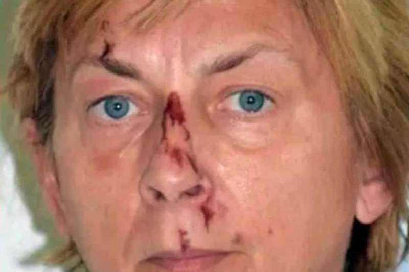 克羅埃西亞公布一名失憶神秘婦女的照片,希望有民眾協助辨認她的身分(取自PU primorsko-goranska)