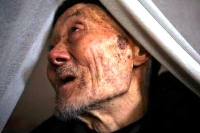 罹患皮膚癌的村民,臉上佈滿砷斑。(取自網路)
