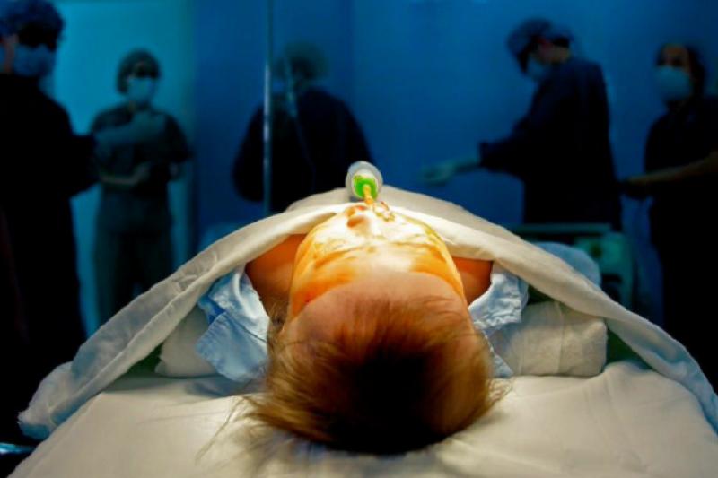 越南唇顎裂手術室,等待手術的孩子。(洪滋敏攝)