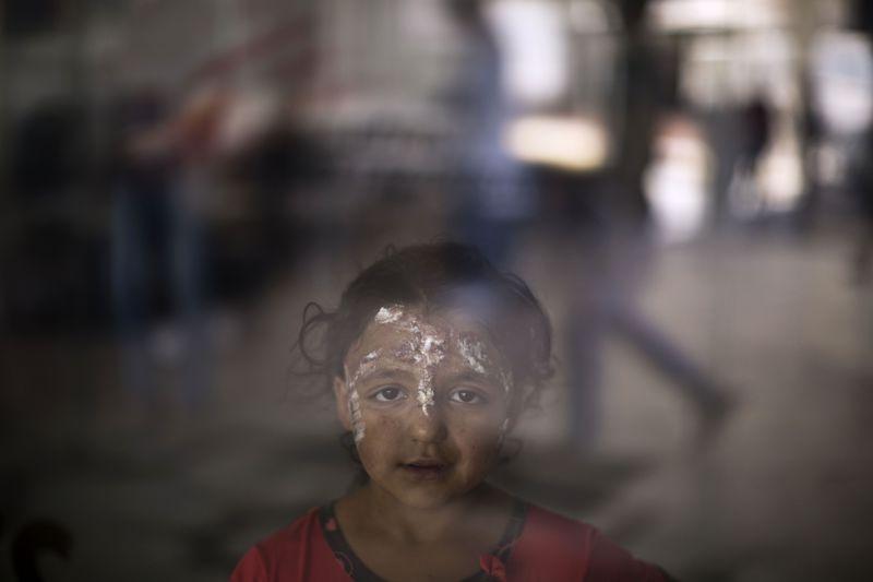 戰火波及無辜中東國家孩童,顏面遭燒傷。(美聯社)