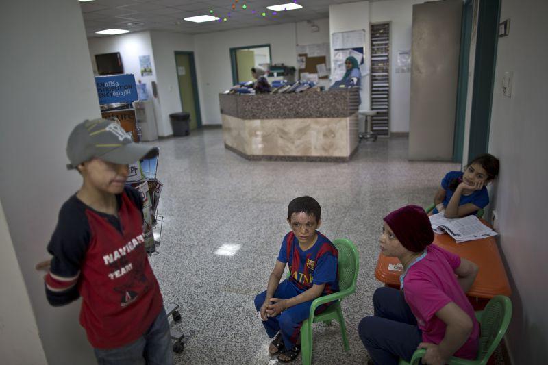 醫院中遭燙傷的孩童。(美聯社)