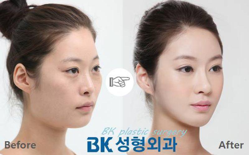 地鐵站隨處可見前後差異非常大的整形醫院廣告。(圖/BK Plastic Surgery@facebook)