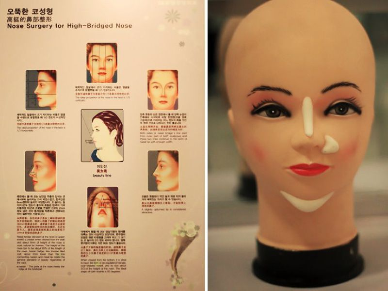 鼻部手術的圖解以及在臉部加入填充物的模型。(圖/BK Plastic Surgery@facebook)