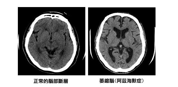 阿茲海默症對於智能退化是不可逆的,患者的腦部也會有相當性的萎縮(取自台灣失智症協會網頁)