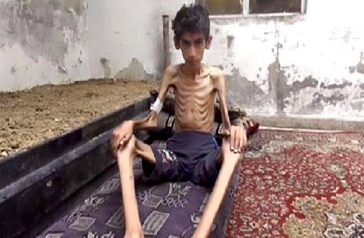 敘利亞西南部小城馬達雅(Madaya),一個即將餓死的男孩。(美聯社)
