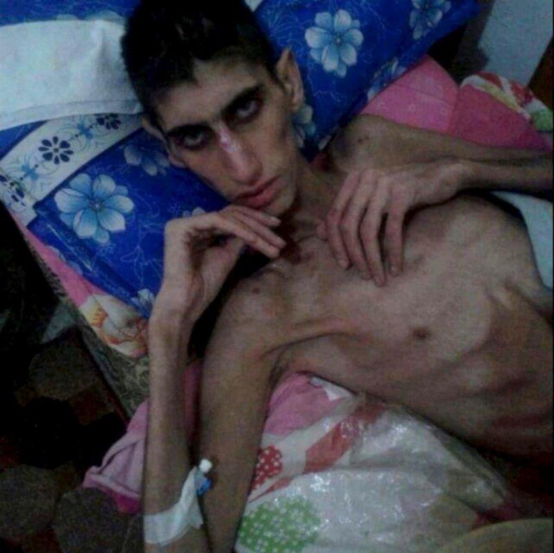 敘利亞小城馬達雅(Madaya)的饑民(取自網路)