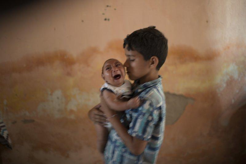 巴西年僅兩個月的「小頭畸形症」患者與他的哥哥。(美聯社)茲卡病毒