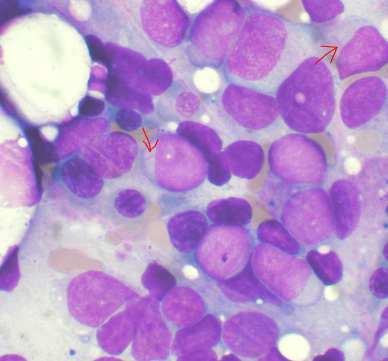 急性骨髓性白血病患者的骨髓抹片,在顯微鏡下可見帶有Auer rods(箭頭所指處)的芽細胞。(取自維基百科,VashiDonsk攝/CC BY 4.0)