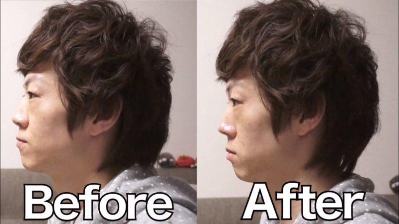 鼻樑整形器的效果看起來好像有點微妙……?(截圖自/SeikinTV@Youtube)