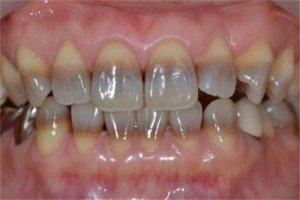 若幼兒在牙齒發育期間使用四環黴素,這些抗生素會與鈣質一起沉積在牙齒中,形成難以去除的淺灰色至黃褐色不等的沉澱。