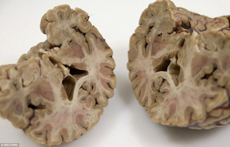 brain06.jpg