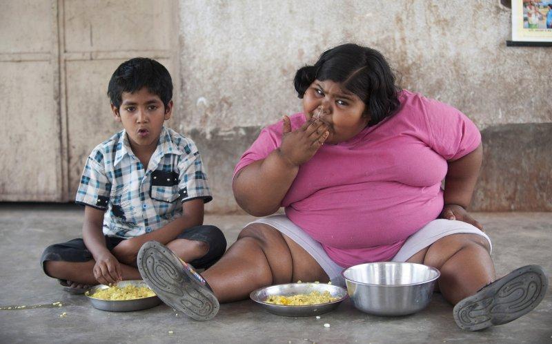 肥胖也屬於營養不良的一種,貧窮國家的兒童也受肥胖問題所擾。(圖/Lwp_Kommunikáció@flickr)