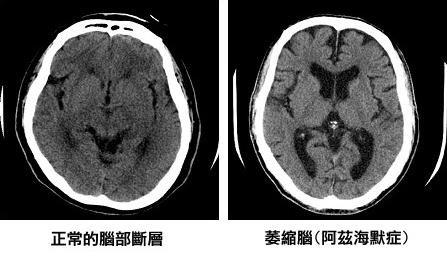 20161015-SMG0045-004-天如專題-正常人及失智症患者大腦電腦斷層對照。(台灣失智症協會提供).jpg