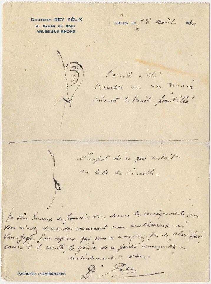 雷伊醫生繪製梵谷割斷耳朵的部位示意圖(AP)