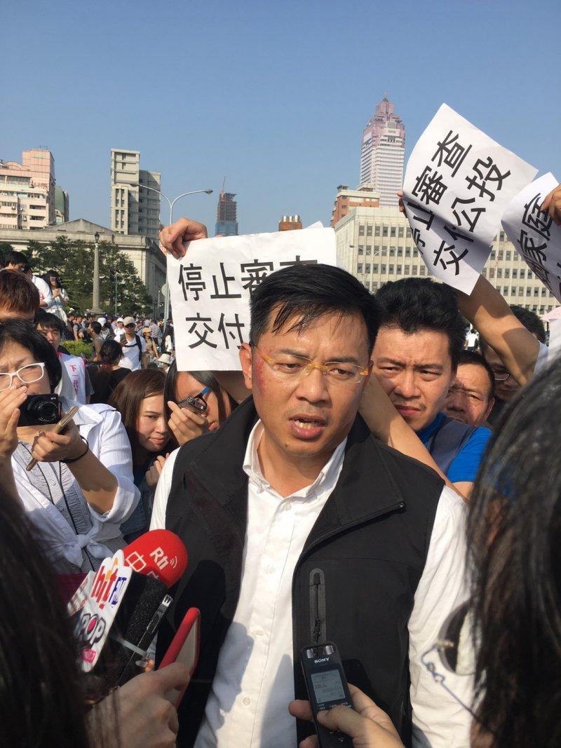 北北基安定力量聯盟秘書長游信義出示他右臉頰的紅腫擦傷,表示是他稍早在立院正門翻入圍牆後遭警方壓制在地所弄傷。(陳耀宗攝)