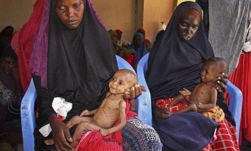 索馬利亞的兒童饑民(AP)