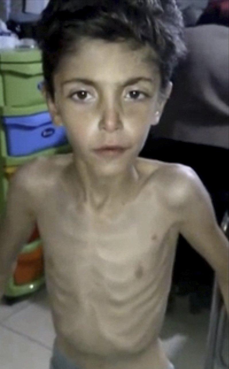 300萬敘利亞兒童生活在人道主義救援無法到達的區域。(美聯社)
