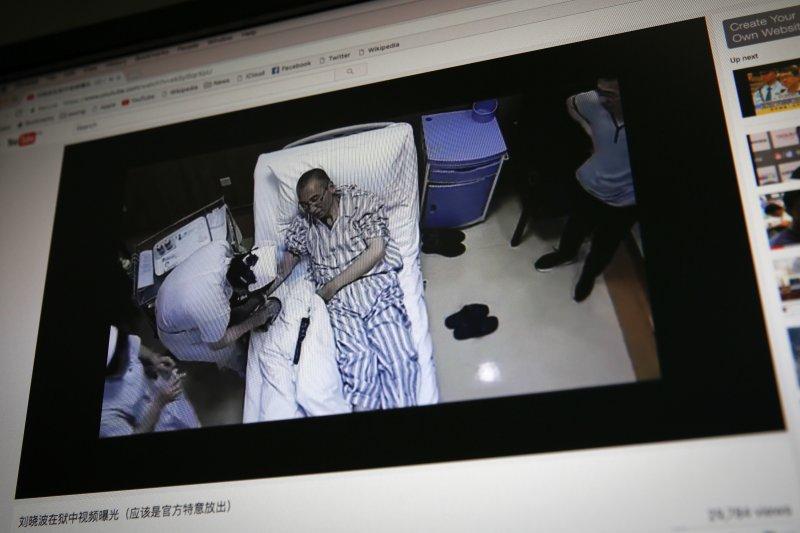 中國民主運動領袖劉曉波,2017年5月底被診斷肝癌末期,獲准保外就醫(AP)
