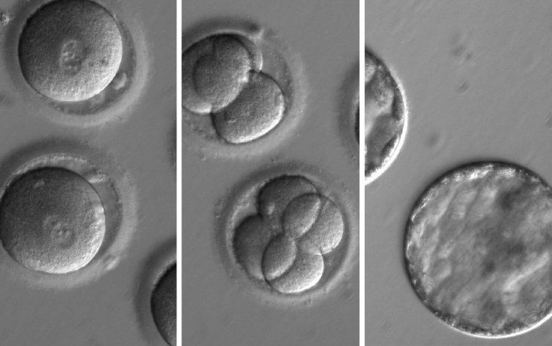 俄勒岡健康與科學大學(OHSU)研究團隊完成全世界首例成功的「人類胚胎基因編輯」,這張照片顯示胚胎的發育過程(OHSU)