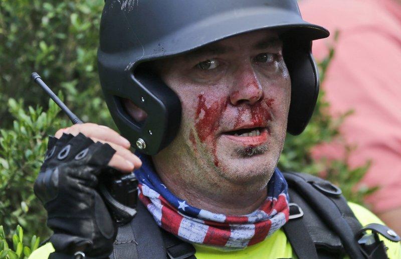 美國維吉尼亞州沙洛斯維(Charlottesville)12日發生種族主義攻擊,釀成慘重死傷(AP)