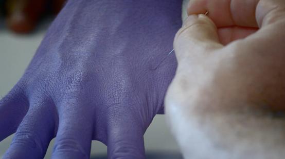 藉著將針插進不同膚色的人的手裡,可以測試受試者對於不同膚色的人的同理心。(《你有種族歧視嗎》影片截圖)