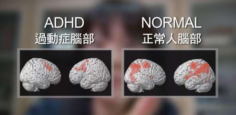 現代孩子罹患ADHD比例越來越高,這與環境中的危險因子息息相關。