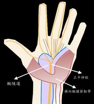 腕隧道症候群。(取自維基百科)