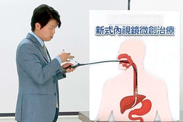 熱射頻胃賁門緊縮術(Stretta),可治療難治型胃食道逆流病人。(圖/臺北市立聯合醫院仁愛院區提供)