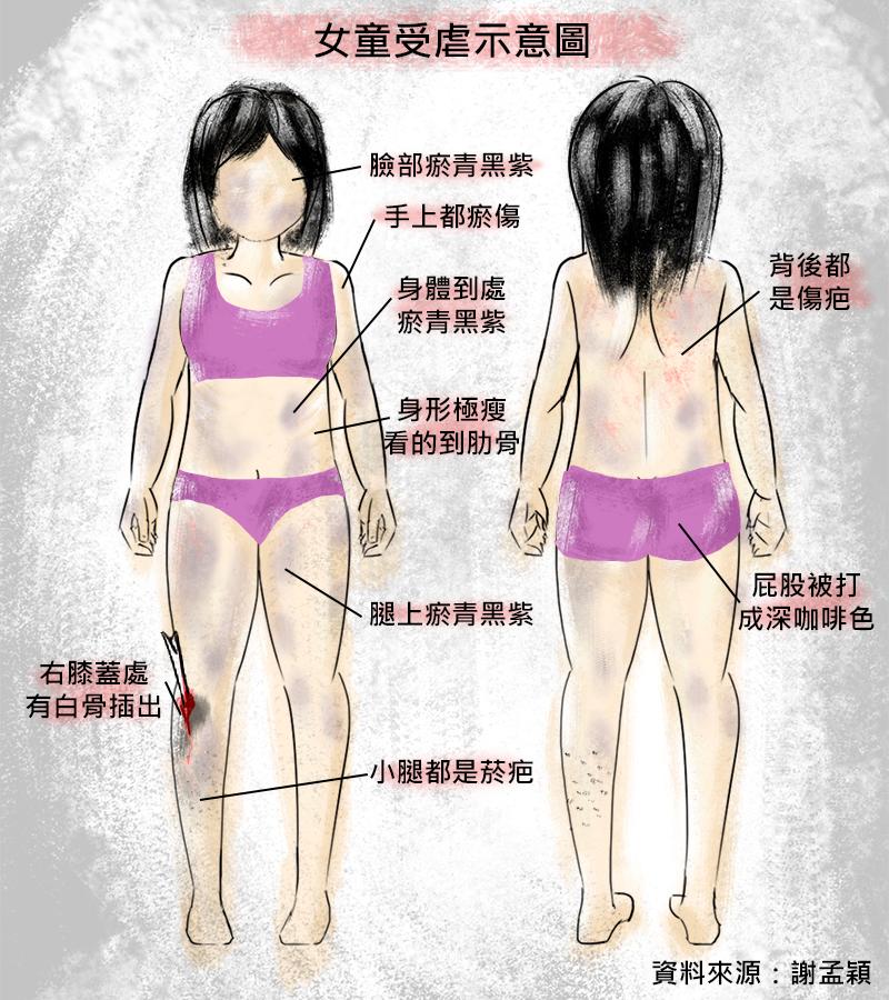 20171216-SMG0035-女童受虐示意圖.png