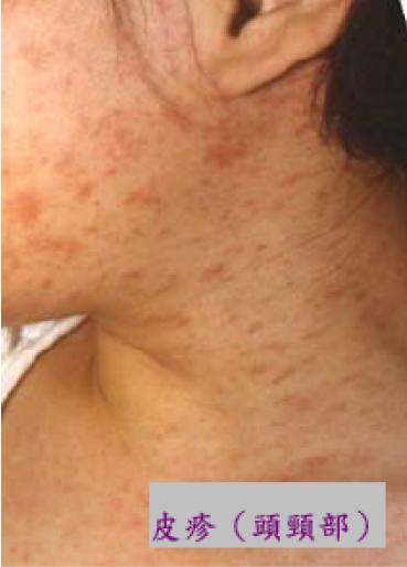 沖繩已有38名麻疹患者,感染源疑是台灣旅客,圖為痲疹症狀之一-皮疹 (圖片取自疾病管制署)