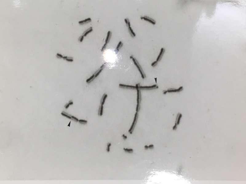 顯微鏡下,姊妹染色分體互換基因片段的結果。(黑色箭頭指示處)(圖/嚴愛鑫,研之有物提供)