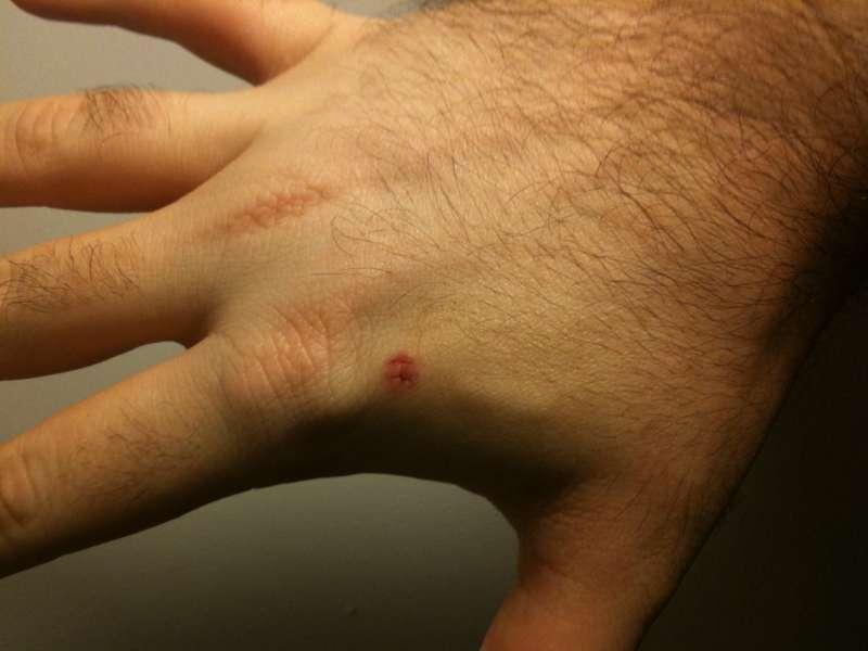 除了明顯可見的植入傷口外,仔細觀察傷口右側有一突起物,即為植入之晶片。(圖/James Wisniewski @ Wiki)
