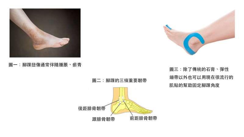腳踝扭傷時通常是傷在外側,外觀看起來像瘀青。嚴重扭傷,依程度能用活動式石膏、彈性繃帶或是現在很流行的肌貼固定腳踝。(圖/福雅骨科家庭醫學科診所提供)