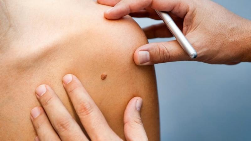 最新研究顯示,人工智慧判斷皮膚癌的準確率高於皮膚科醫師(截自YouTube)