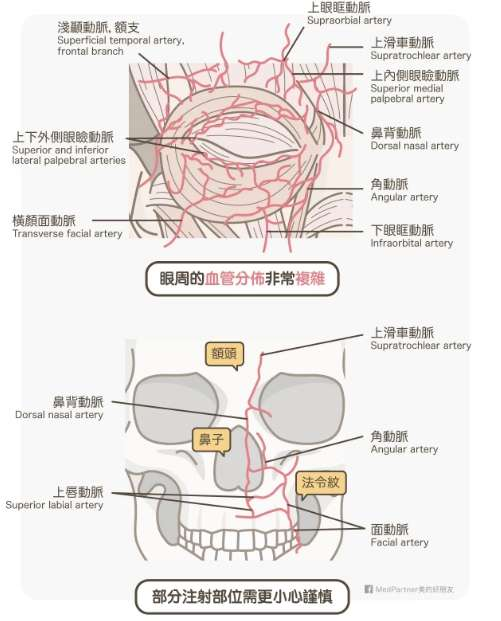 眼周血管。(圖/medpartner)