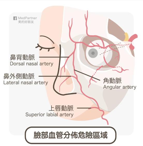 臉部血管分布危險區域(圖/medpartner)