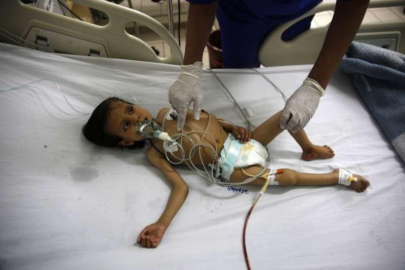 葉門西部沙那的醫院內,護士正在照顧一名營養不良的小男孩(AP)