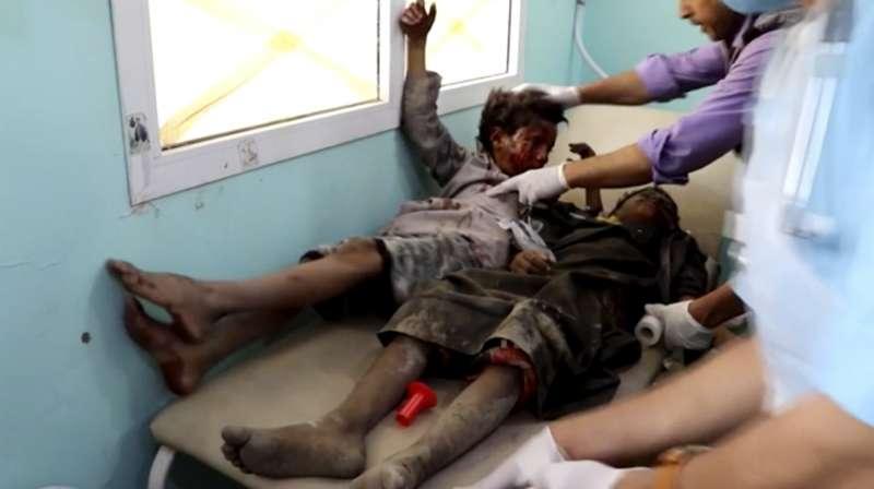 葉門北部薩達省的一輛校車9日遭到沙烏地阿拉伯領導的盟軍空襲,被炸得滿臉鮮血的學童被送到醫院救治(AP)